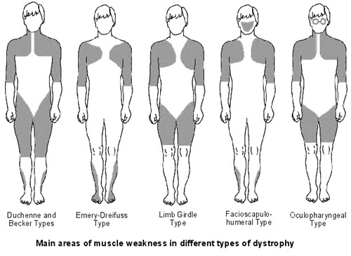 Muscular dystrophies ccuart Image collections